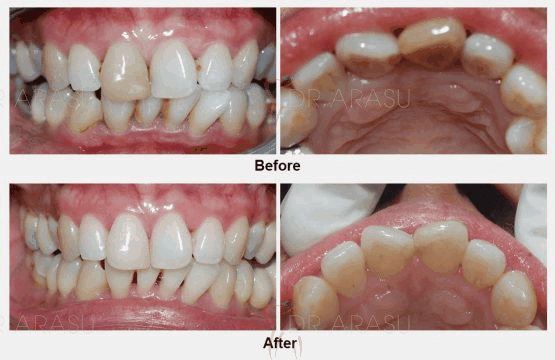 Treatment for discoloured non-vital tooth