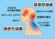 頸原性頭痛の図.png