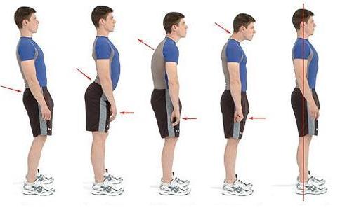 Bilan postural