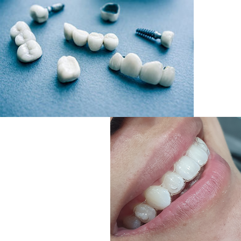 Prosthodontics and Clear Aligners Special