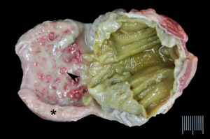 Swollen proventriculus with haemorrhages  (courtesy: eprints. Nottingham.ac.uk)