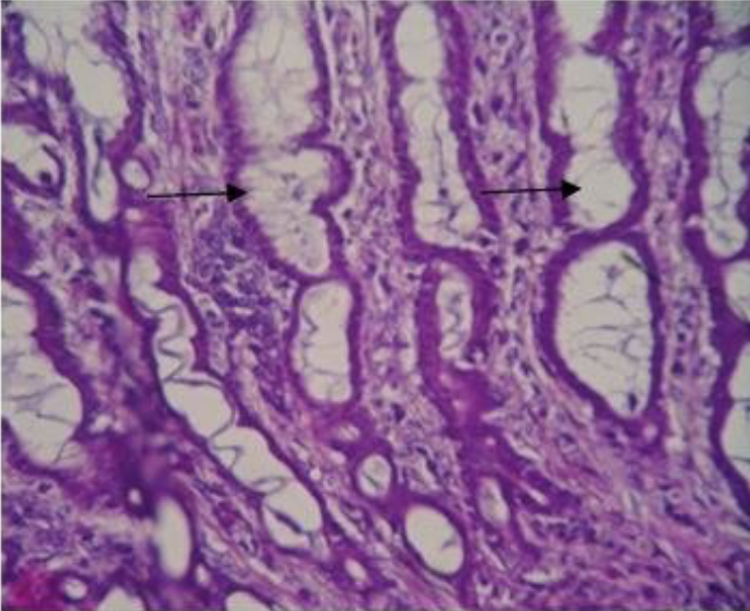 Tortuous mucosal folds with mucin strands in their lumen and mild cellular proliferation (Courtesy: entomoljournal.com)