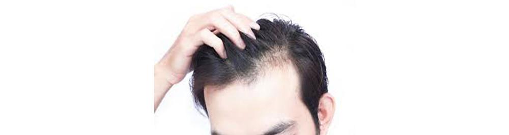 Hair Loss Treatment Clinic