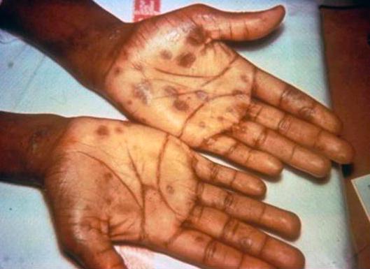 syphilis test singapore