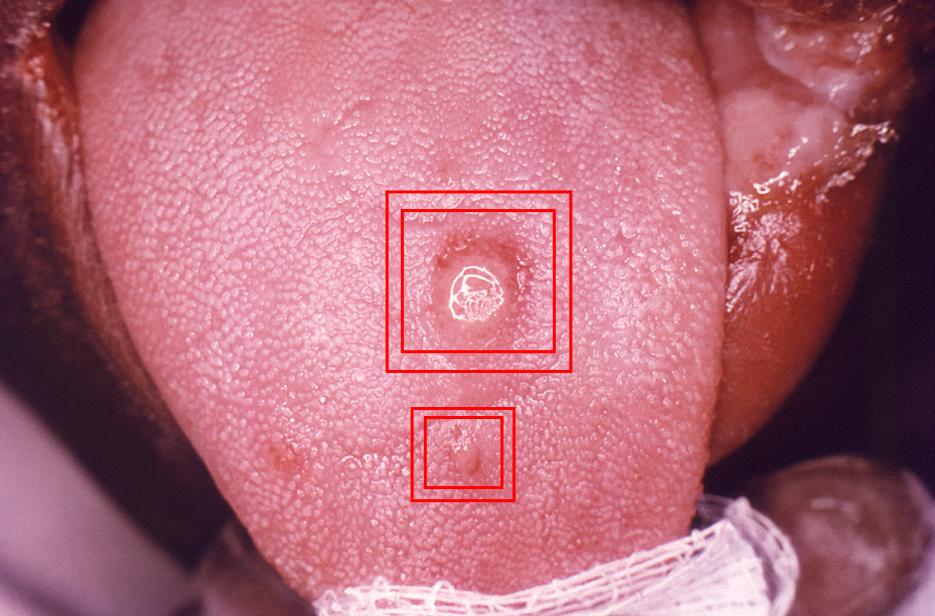 Syphilis Treatment Singapore