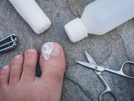 When Should You Seek Professional Ingrown Toenail Treatment