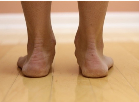 What exercises should you do if you have a flat foot?