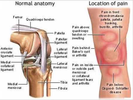 Got Knee pain?