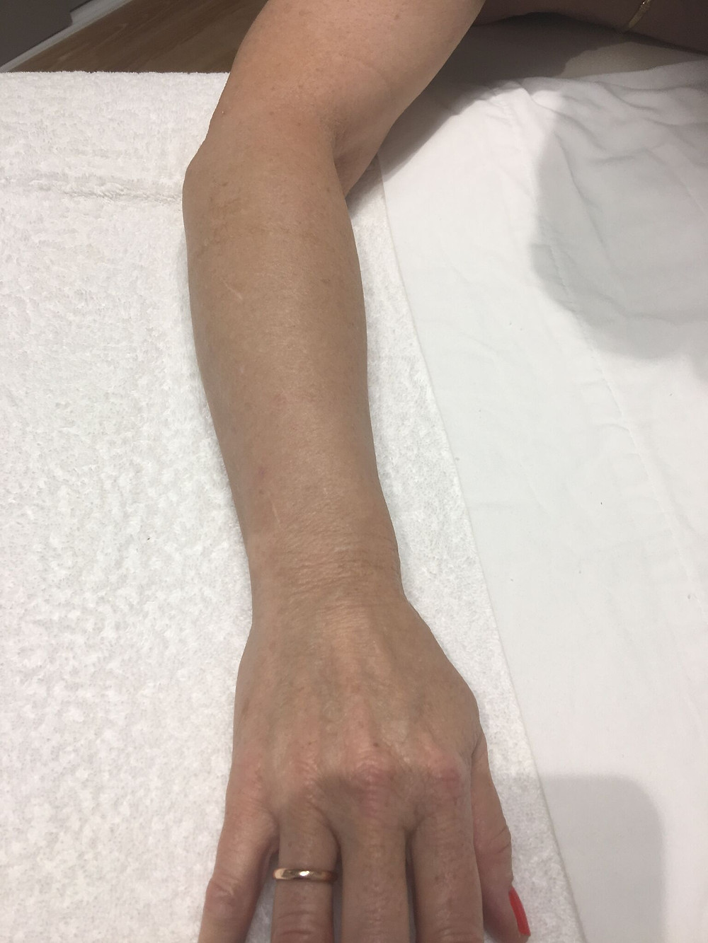 After IPL Photorejuvenation - Left Arm