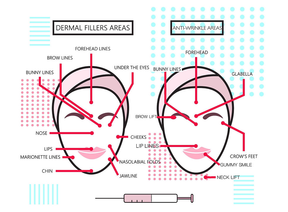 Cosmetic Injectables Treatment Areas