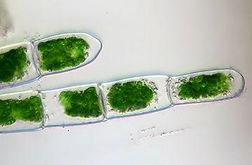 Algae Micrograph.jpg