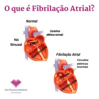 Fibrilação Atrial - Entenda melhor essa Arritmia