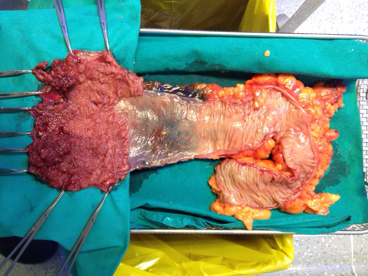 Laparoscopic Rectal resection