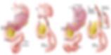 Trattamento chrurgico del tumoe dello stomaco