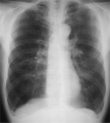 重度COPDのXp.jpg