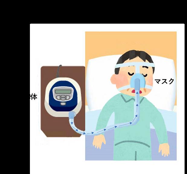 CPAP治療.png