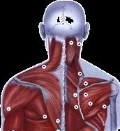 Trigger points kinésithérapie