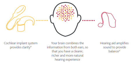 Chart explaining benefits of cochlear implants and hear aids