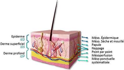 mesoterapia tavira.jpg