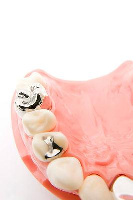 メタルフリー審美歯科