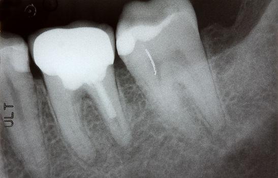 歯内治療(根管治療)とは