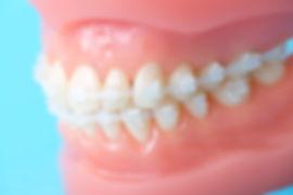 歯の色に溶け込むセラミックブラケットがおsお勧め