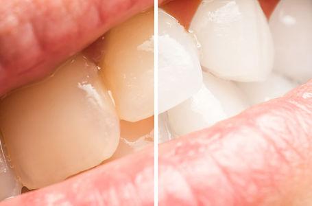 白く輝く歯にするために