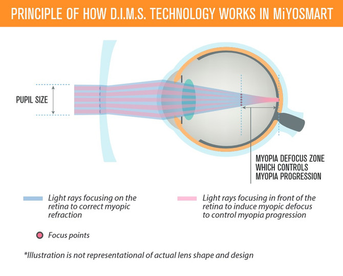 Myopia Control - Using MiyoSmart Lenses in Spectacles.