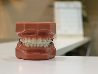 All you need to know about Orthodontics and braces