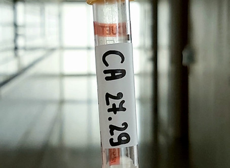 מרקר CA 27.29 – אנטיגן הקשור לקרצינומה של השד