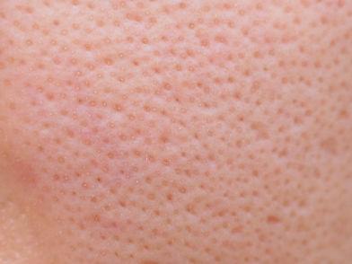 Macro photo of big pore on oily facial skin type.jpg