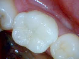 Back Tooth White Filling (1 surface)