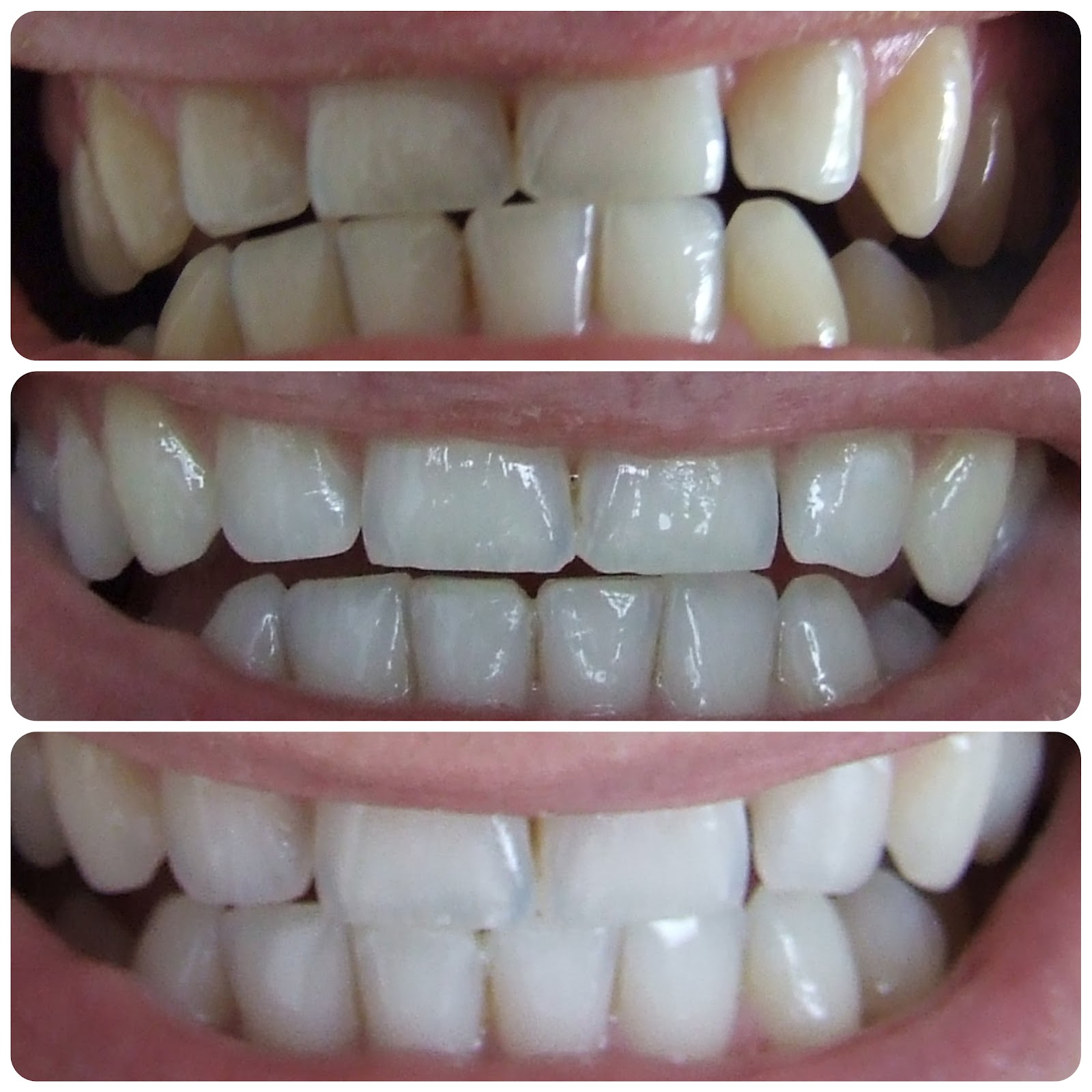 Everything You Wanted To Know About Whitening