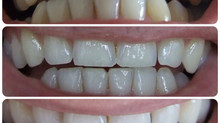 Everything you wanted to know about whitening.