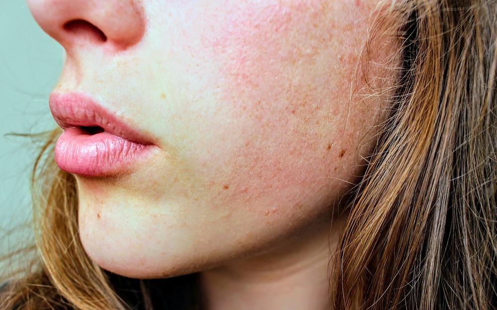 skin; eczema; itching
