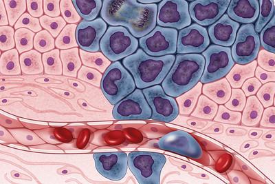 Metastasis in Cancer