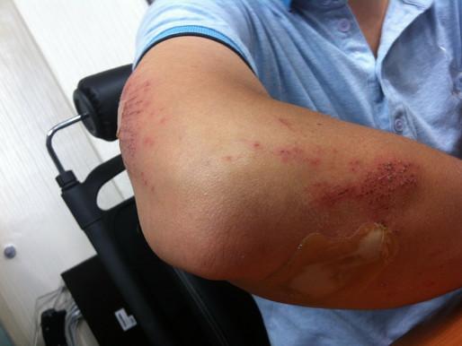 Brutal Bruises