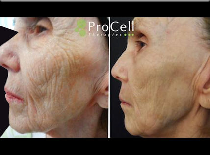 Microneedling with Stem Cells