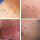 Skin Irregularities