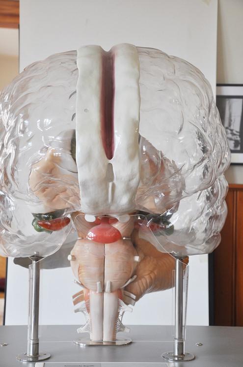 transparentes_Gehirn.jpg
