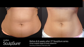 0717_BA_SculpSure_Marciano_2017_nobadge.