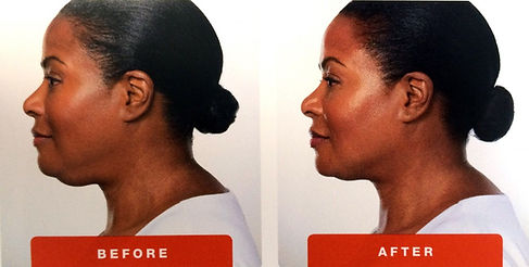 Kybella-images-page-4-1024x517.jpg