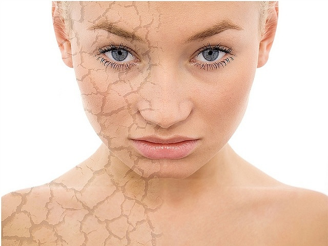 DRY-DEHYDRATED-SKIN-WHAT-CAUSES-DRY-SKIN-ON THE FACE