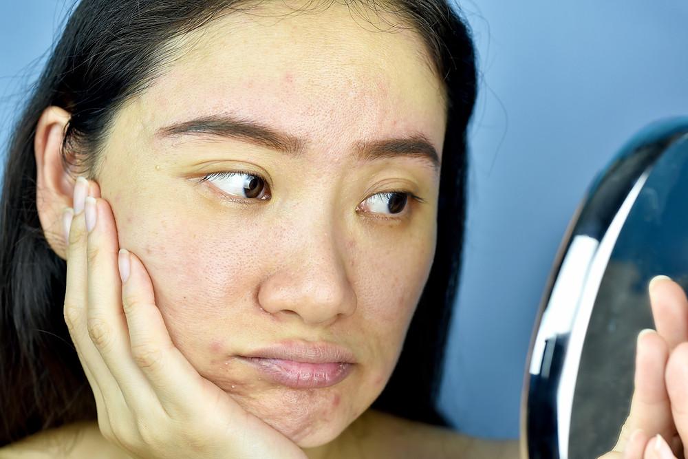 when should you exfoliate your skin