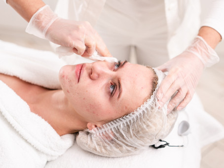 HOW TO TREAT ACNE CAUSED BY WEARING A MASK?