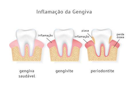 periondontologia_texto.jpg