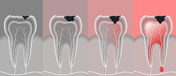 endodontia-tratamento-de-canal-dra-regin