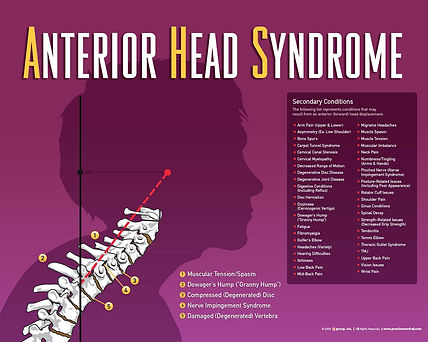 Anterior Head Syndrome Waupaca Wisconsin Chiropractor