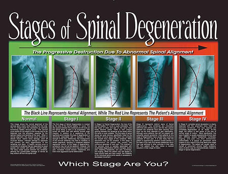Stages of Spinal Degeneration Waupaca Wisconsin Chiropractor