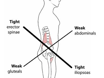 Lower cross syndrome ehk miks Su alaselg valutada võib